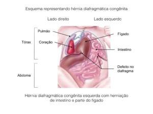 Hérnia diafragmática congênita